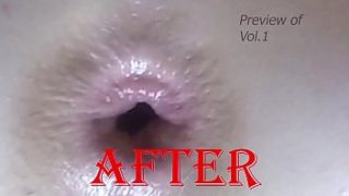 1st Time ANAL #2 (Comp)